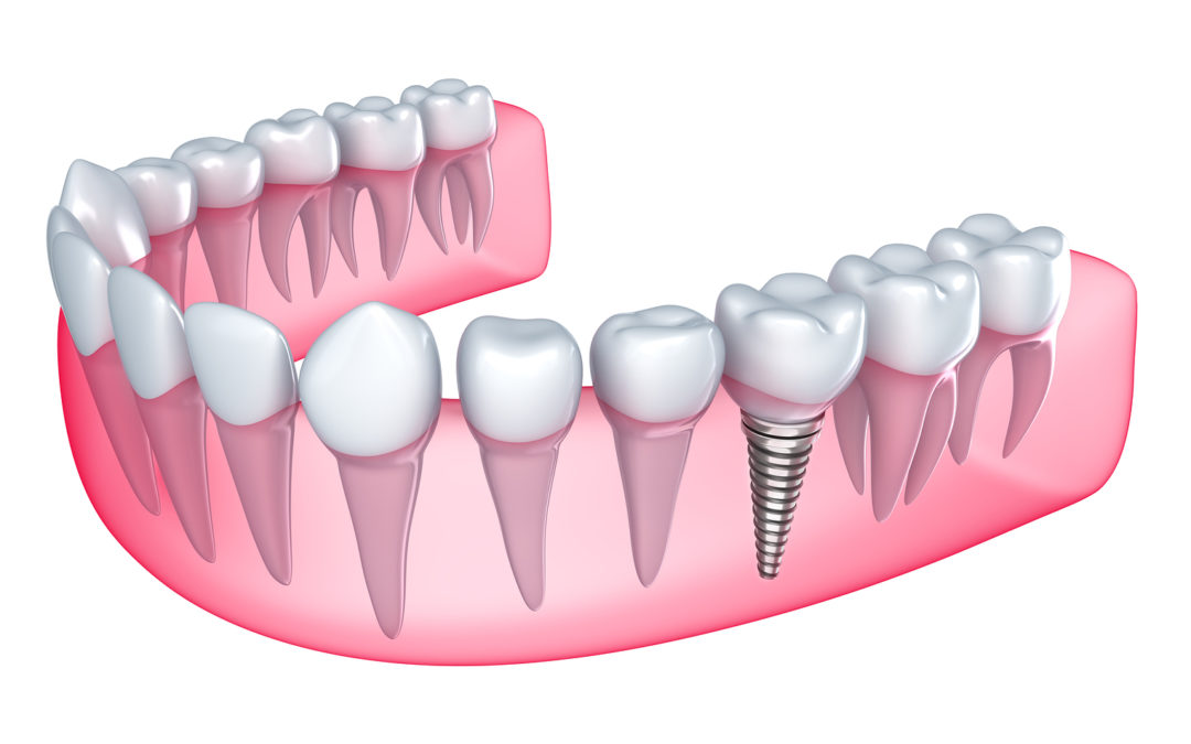 Things to know about dental implants
